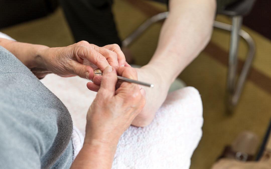 Pflegetipps für einen diabetischen Fuß
