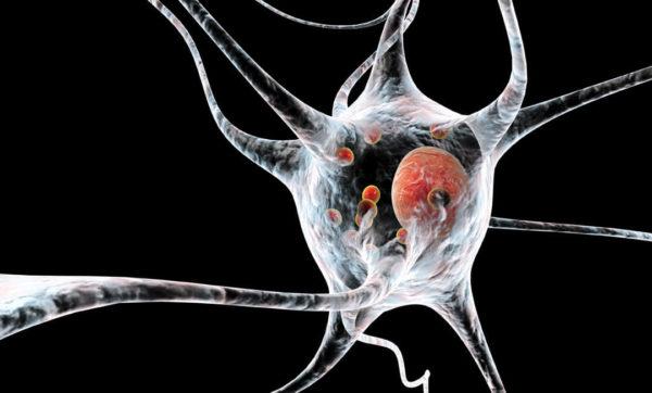 Parkinson und PSP sind nicht dieselbe Krankheit