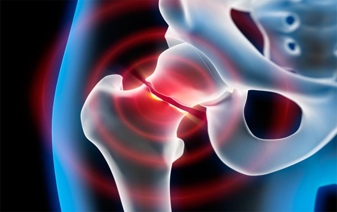 Welche Anzeichen und Symptome deuten auf einen Oberschenkelhalsbruchhin