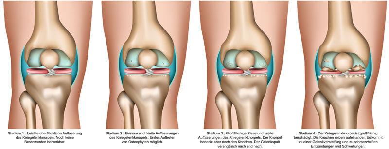 Die Kniegelenkarthrose wird in 4 Stadien eingeteilt.