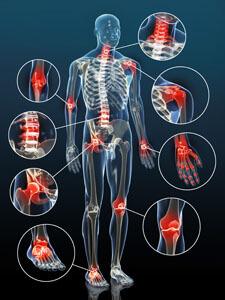 Vom Hals bis zu den Zehen kann praktisches jedes Gelenk an einer Arthrose erkranken.