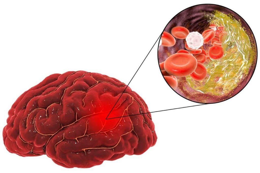 Blutgerinnsel im Kopf